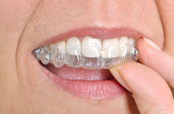 Invisalign brentwood ca