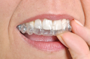 Invisalign® Clear Aligners - Alternative to braces