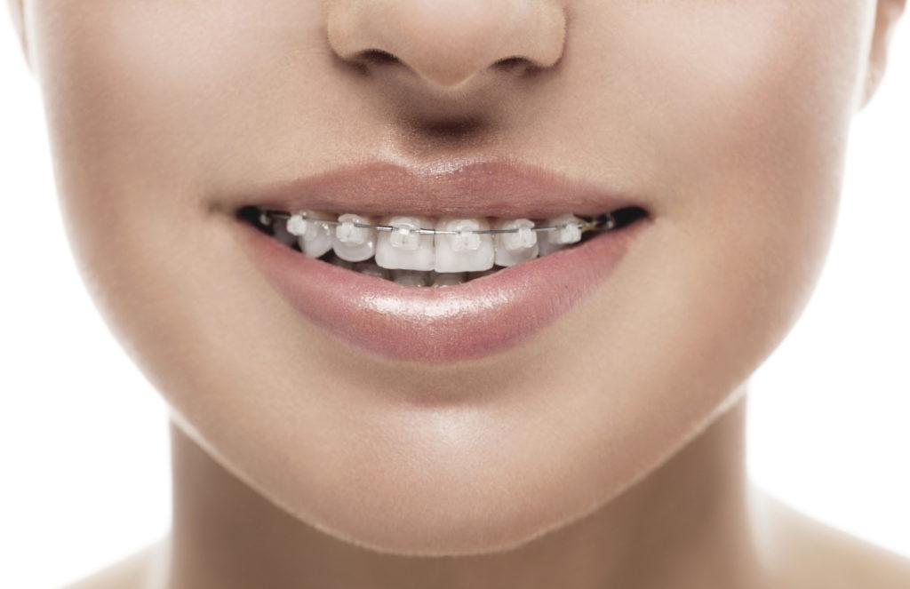 braces-west-la