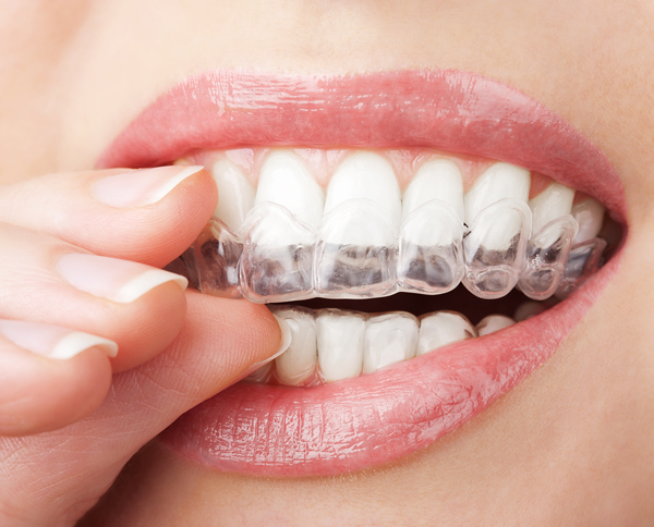 average cost of invisalign brentwood-ca