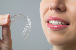 smile direct club vs invisalign